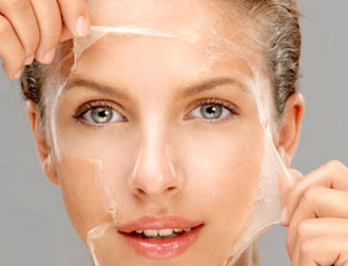 Chemical Peels – For a Fresh And Younger Skin
